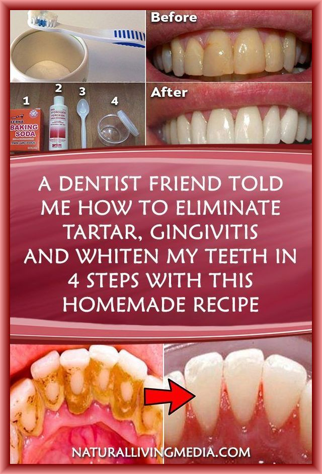 A DENTIST FRIEND TOLD ME HOW TO ELIMINATE TARTAR,