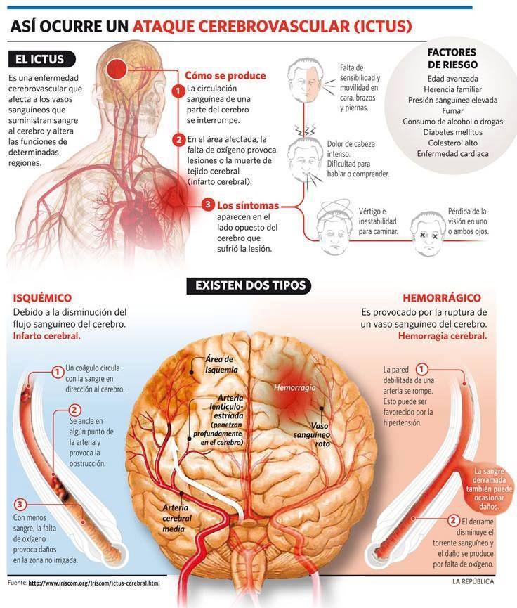 El ictus es una enfermedad cerebrovascular que afecta a los vasos ...