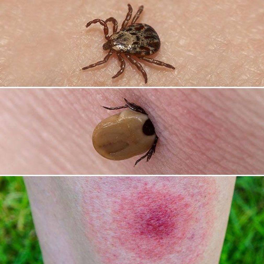 Comment Distinguer Les Differentes Piqures D Insectes Piqure Insecte Morsure De Tique Piqure De Tique