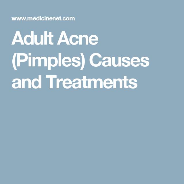 Adult Acne (Pimples) Causes and Treatments