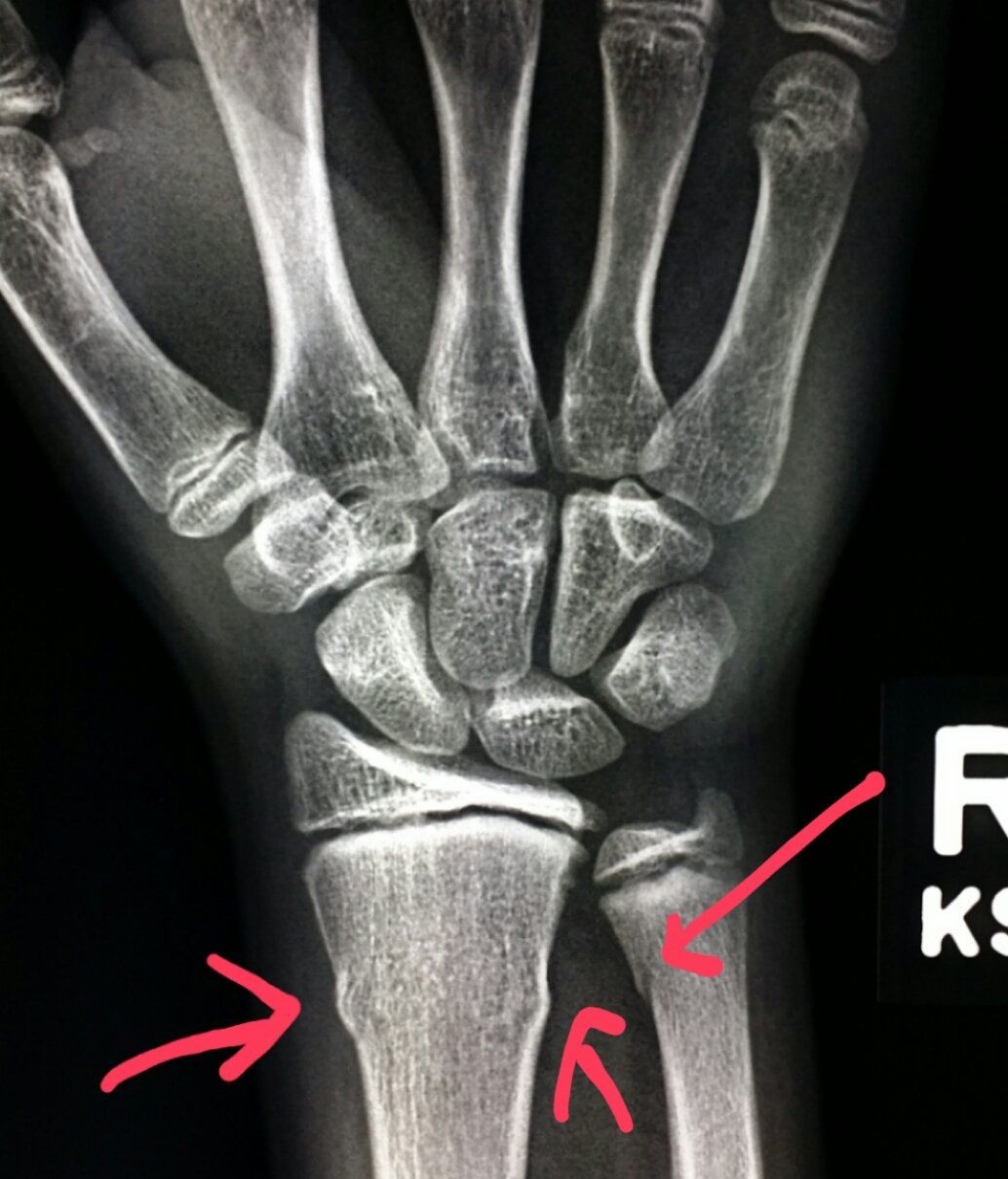 Wrist #xray shows #buckle #fractures of the #radius and #ulna ...