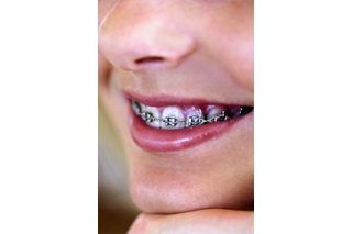 How to Make Fake Braces for Halloween