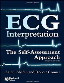 Ecg Interpretation The Self Assessment Approach 2nd Edition