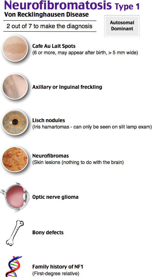 Neurofibromatosis Type 1   Neurofibromatosis type 1 ...