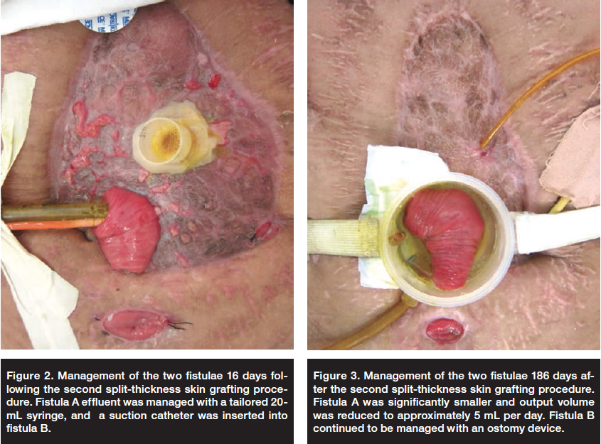 Development Of Two Enteroatmospheric Fistulae After Split Thickness Skin Grafting A Case Report Ostomy Wound Management Skin Grafting Grafting Ostomy Care