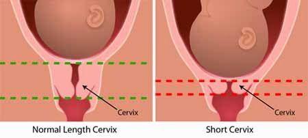Kutill vaginal dilation tool