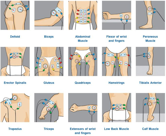 TENS pad placement   Electroterapia Electroestimulacion ...