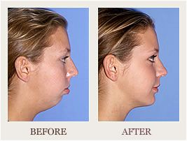 What Is Chin Surgery Chin Surgery Or Mentoplasty Is A