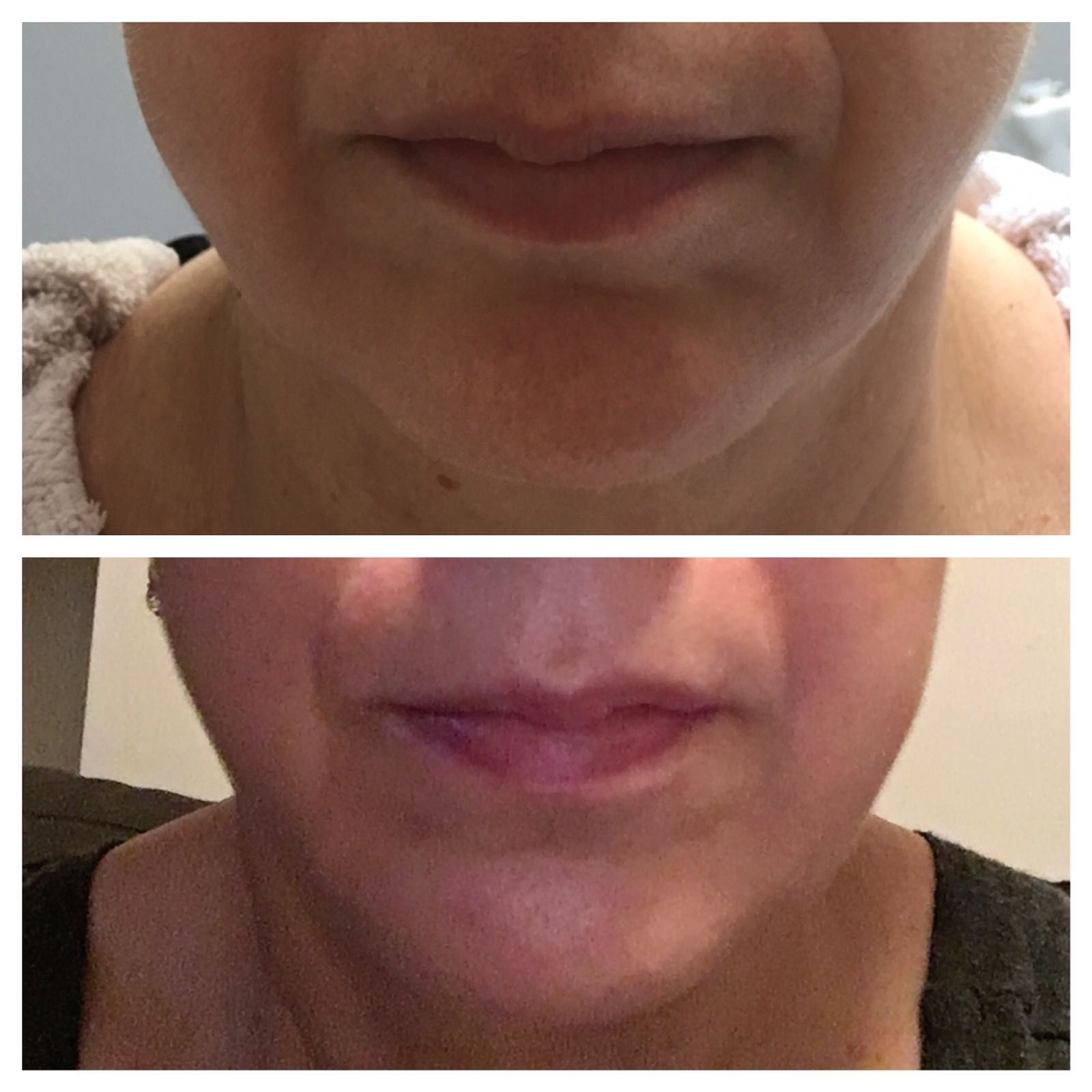 Amazing results for another happy Client after 1 H I F U