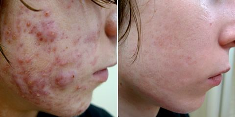 Pin On Revitol Scar Cream Users