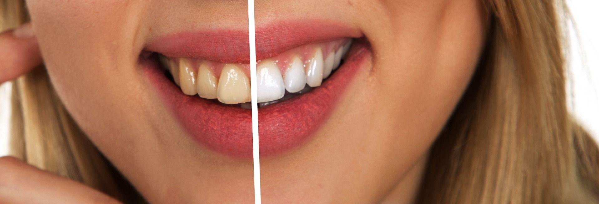 Aprenda A Clarear Seus Dentes Em Casa Gastando Pouco E Com