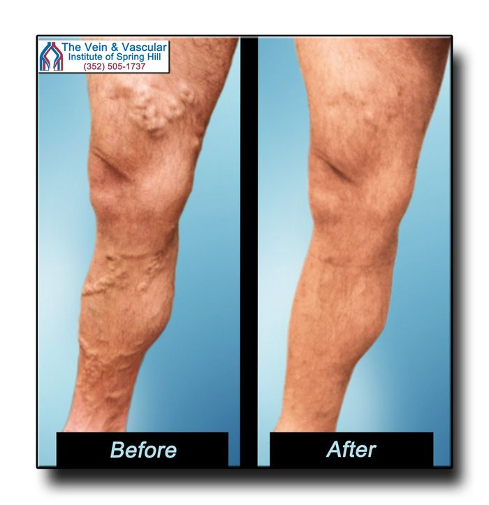 Varicose Veins Images After Laser Surgery at The Vein and Vascular Institute.  Call (352) 505-1737 for your Vein Consultation. http://www.veinandvascularofspringhill.com/varicose-veins-before-and-after-pictures/