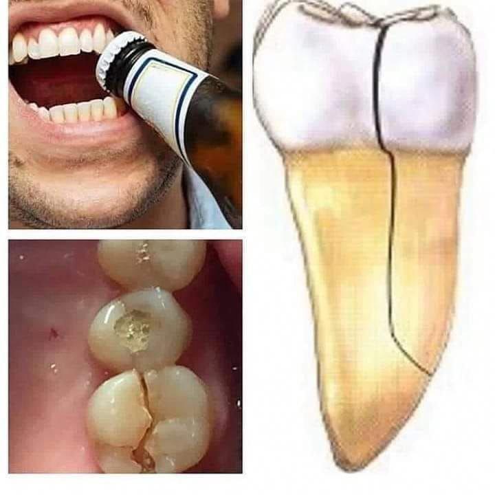 Zähne müssen ein ganzes Leben lang halten, daher ist es wichtig, auf sie aufzupassen ….   – santé bucco-dentaire