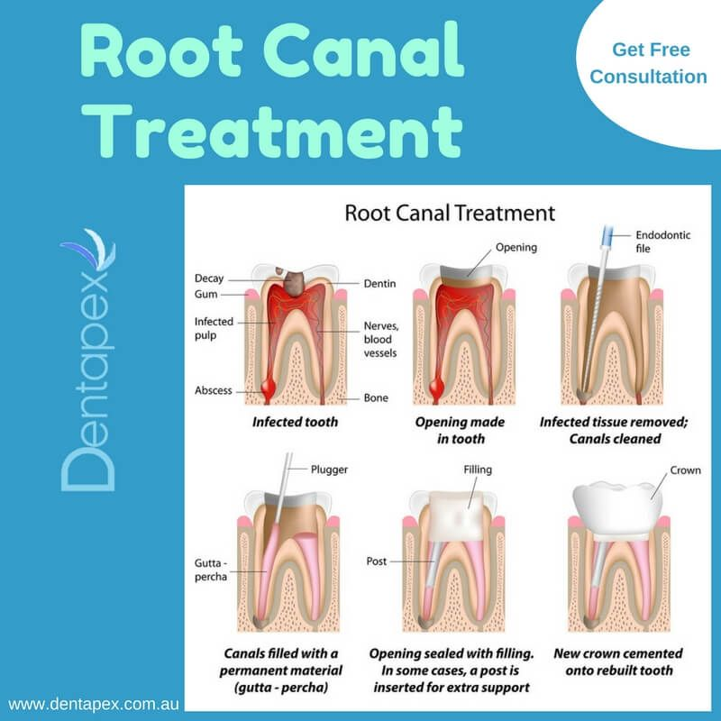 Root Canal Is The Inner Part Of Tooth Between The Pulp And