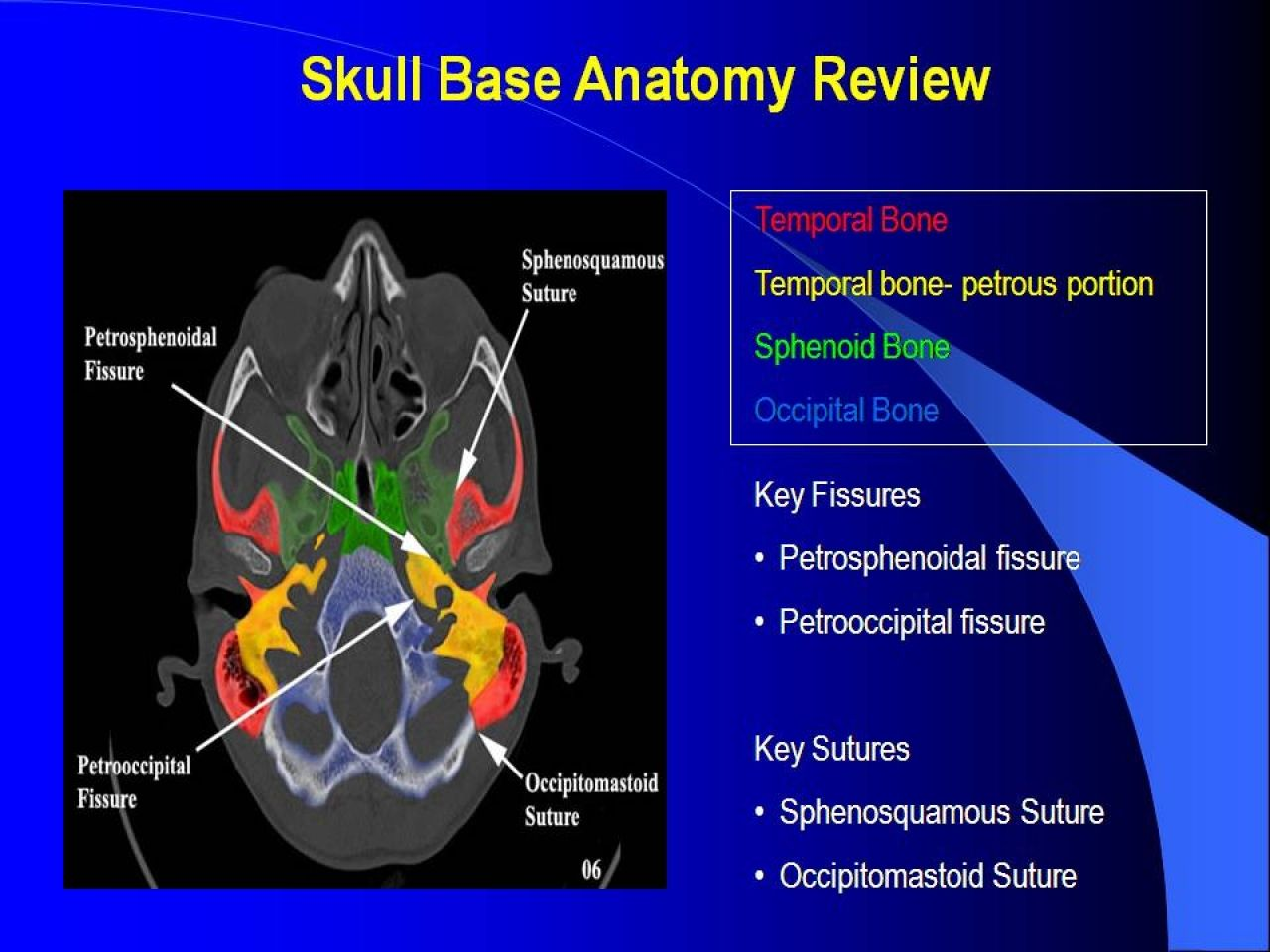 Skull Base Review And Pathology Veomed Radiology Pinterest