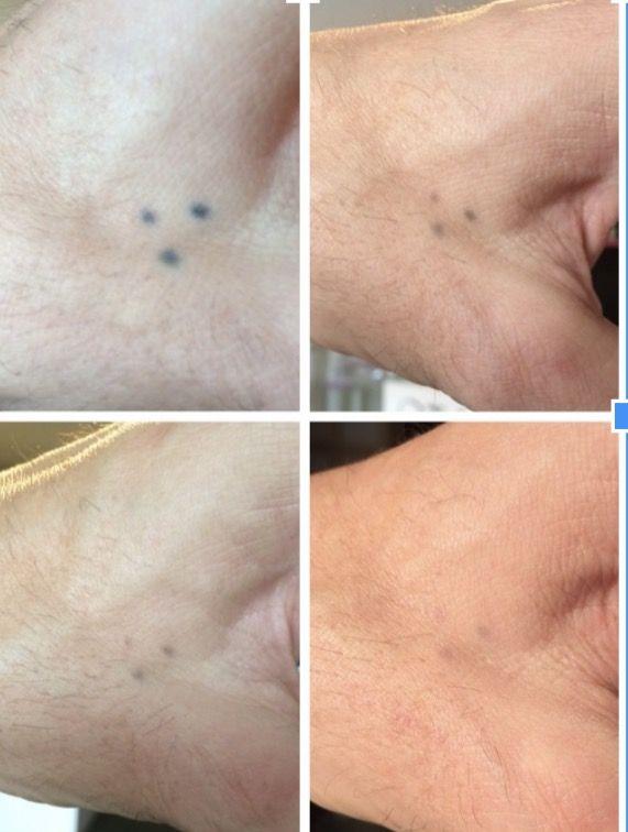 Verwijderen 3 Puntjes Op Hand Tattooremoval Tatoeage