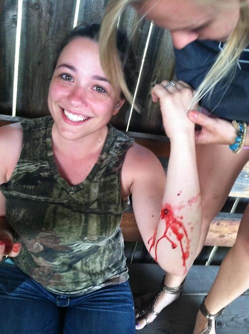 this chick got shot #shot #blood #ouch