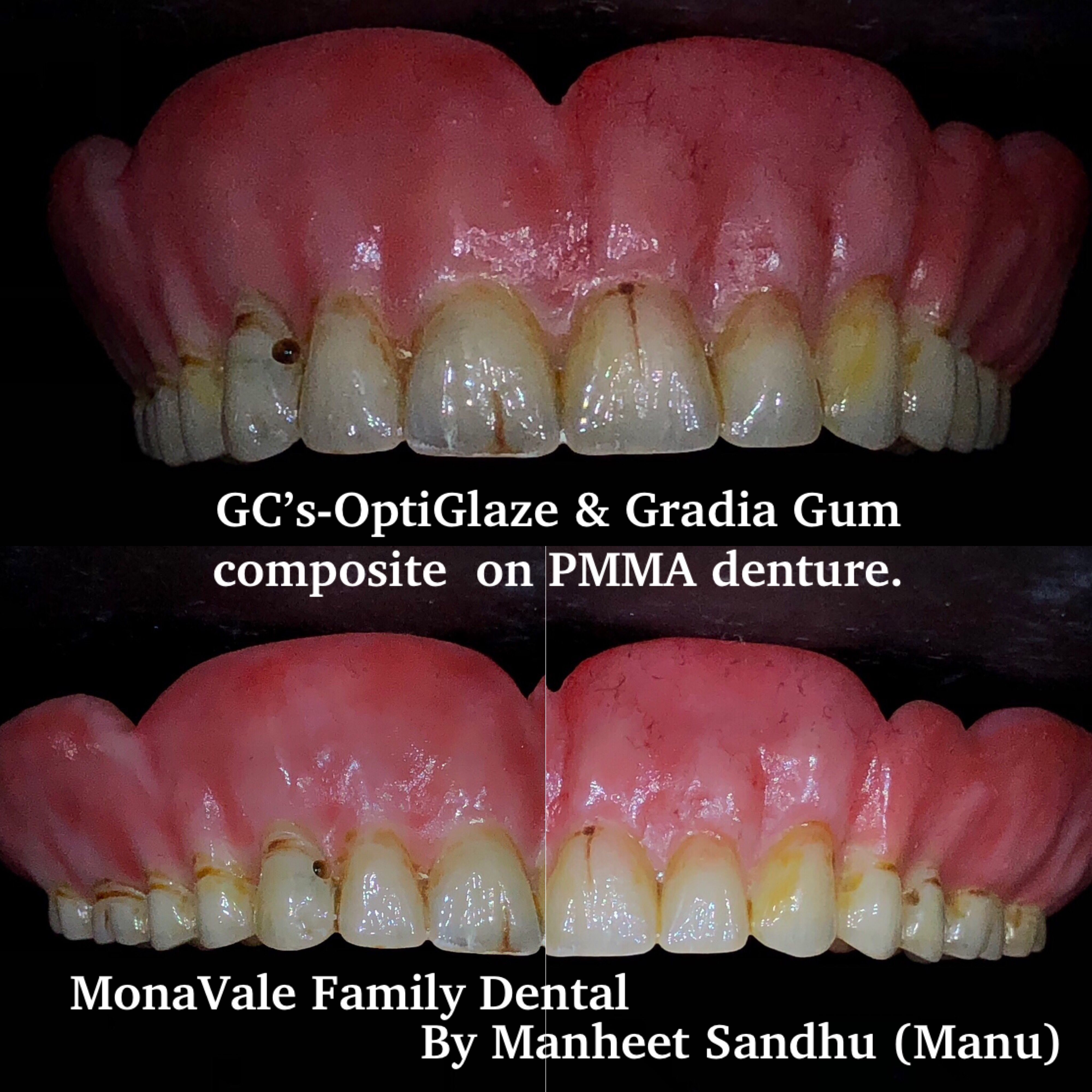Trying Learning New Skills So We Can Serve You Better Denture In The Sky A Demo Case Monavale Family Dental Suite5 1762 Pi Family Dental Dental Denture