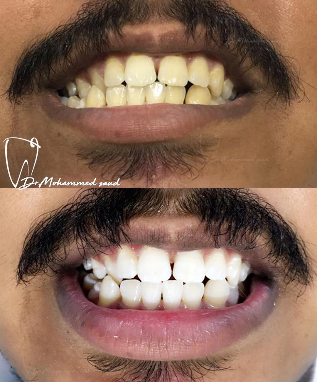تبييض اسنان بالليزر رمضان كريم عروض رمضان أسنان الأطفال زيركون ايماكس أسنان توريد لثة سناب اون سمايل قص لثة فينيرز Cosmetic Denti Teeth Laser Dental