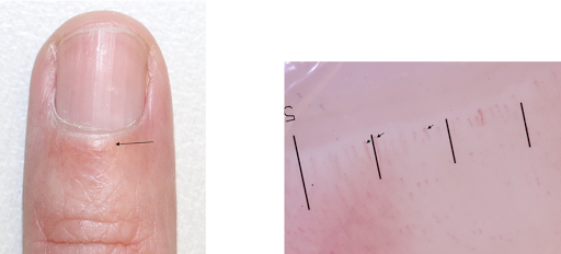 فحص تنظير طية الظفر Nailfold Dermatoscopy