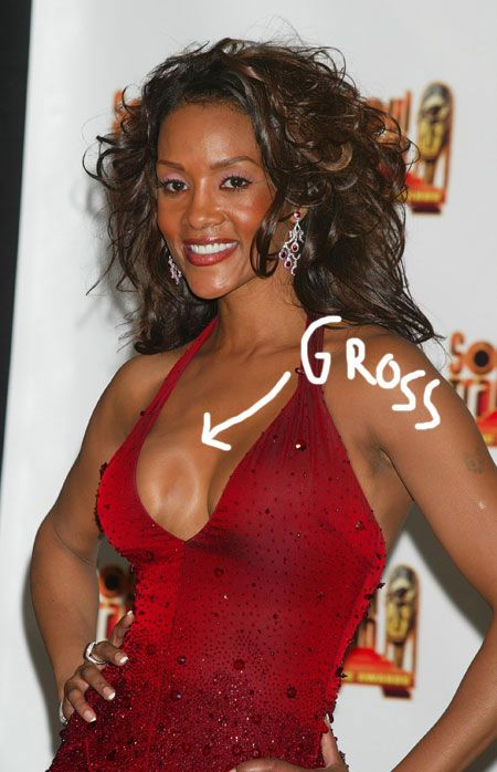 Vivica Fox wardrobe malfunction reveal breast implants. It's nice to see  that even celebrities don't get the desired end result.