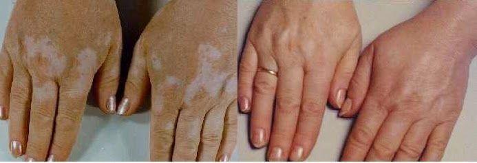 Quieres Eliminar El Vitiligo Naturalmente? Estos 4 Remedios Caseros Te Ayudara