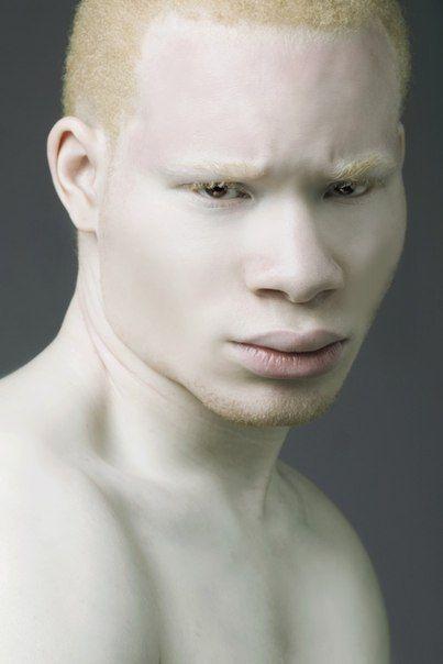Albino xxx picture 64