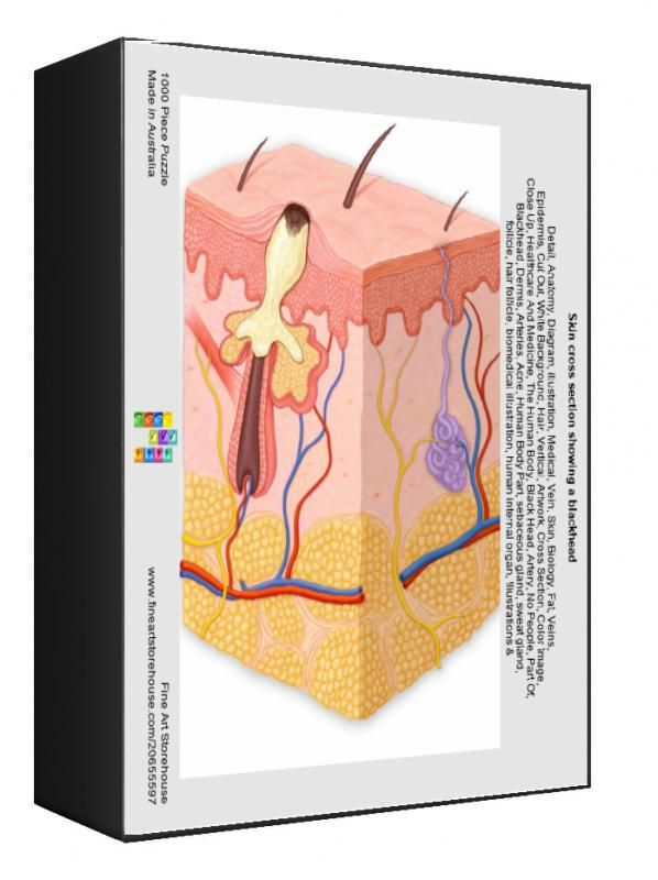 14+ 1000 Piece Puzzle. Skin cross section showing a blackhead