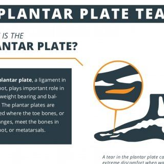 Plantar plate tear what is the plantar plate the plantar plate a plantar plate tear what is the plantar plate the plantar plate a ligament in the foot plays important role in both weight bearing and bal ance publicscrutiny Image collections