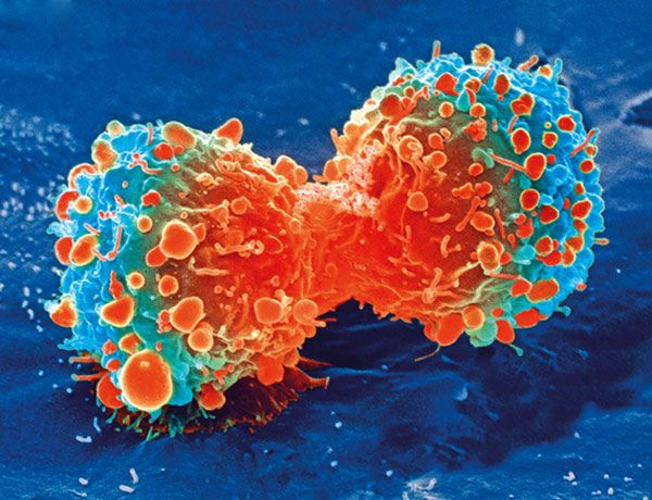 Close-up: Tumor cells divide rapidly and unchecked. The photo shows a lung cancer cell during cell division – taken with a scanning electron...