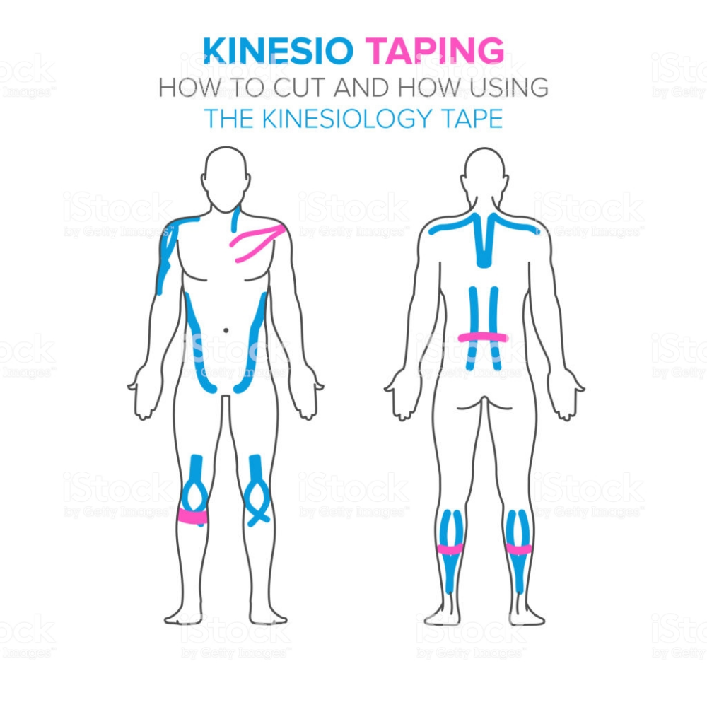 Pin on Kinesio Taping — Knee