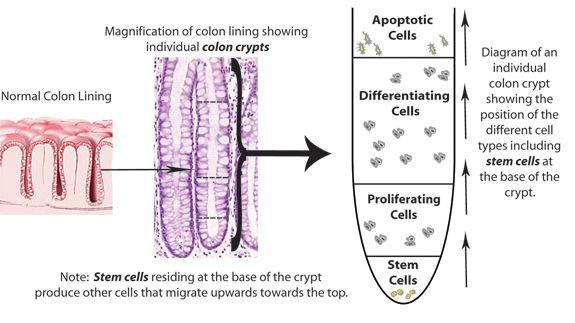 Stem Cells Colon Cancer Colon Cancer Cancer Info Stem Cells