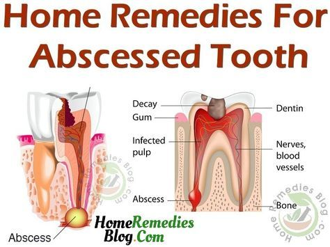Best Home Remedies For Abscess Tooth | Abscess tooth, Teeth remedies, Tooth  abcess remedy