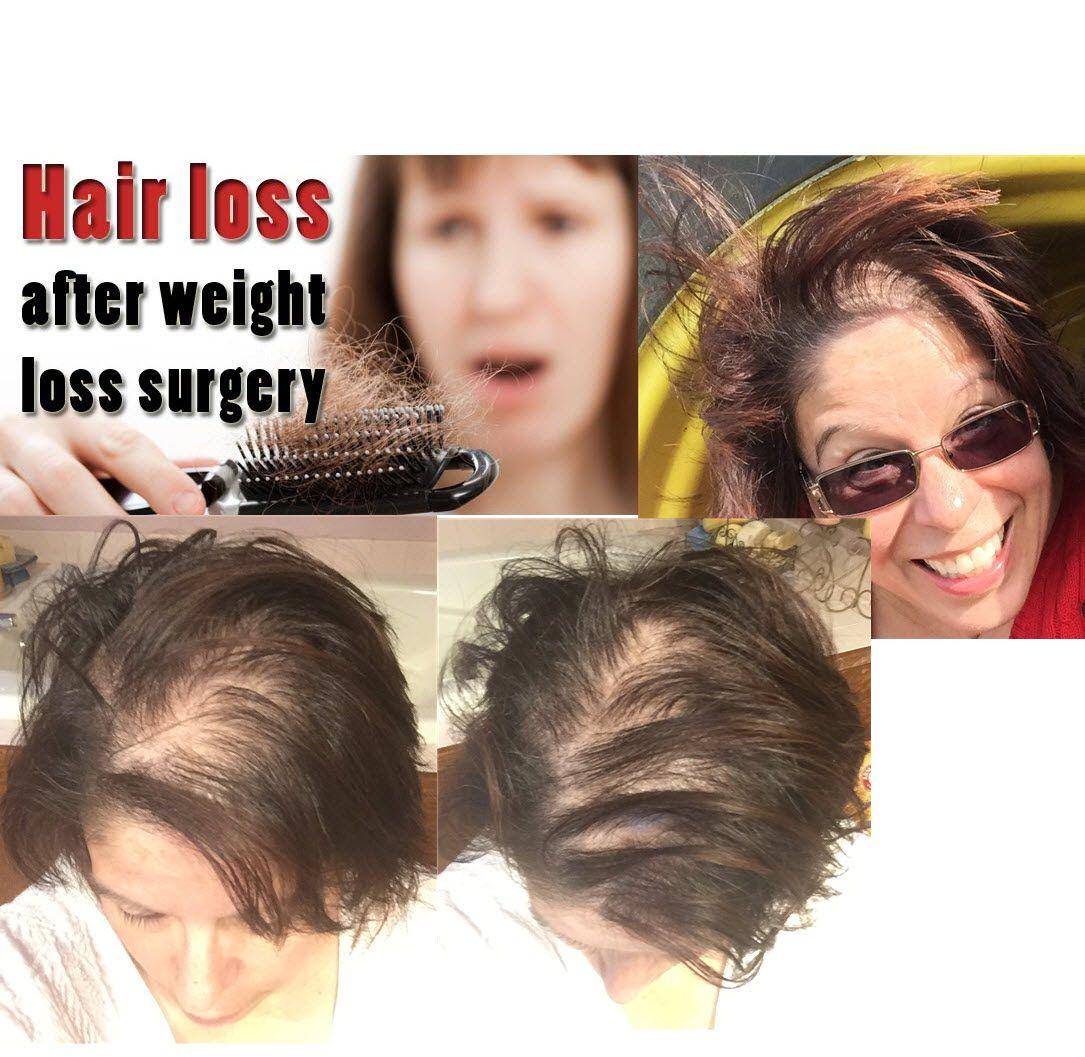 losing hair after weight loss surgery