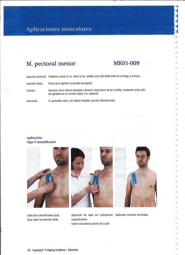 M.  pectoral menor MKO1-0O9  inserción proximal:  Tendinoso desde la 2a hasta la 5a costilla cerca del limite entre el car...