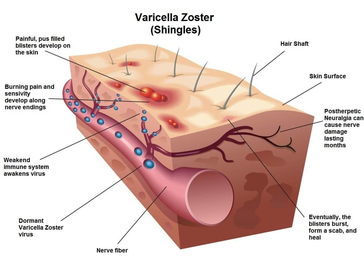 tratamiento de prostatitis o herpes zoster