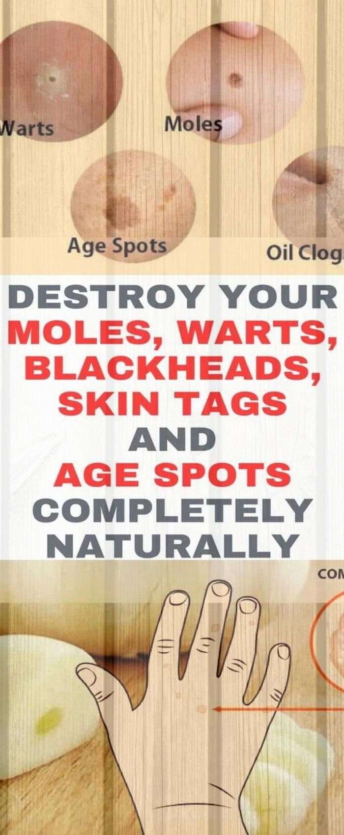 Destroy Your Moles #warts Blackheads Skin Tags And Age Spots Completely Naturally People experience...