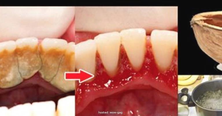 Completel ingredient natural plaque remove single