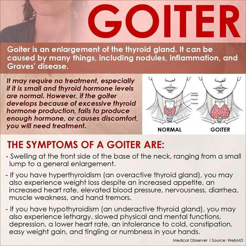Goiter Symptoms Thyroid Treatment Thyroid Goiter Thyroid Health