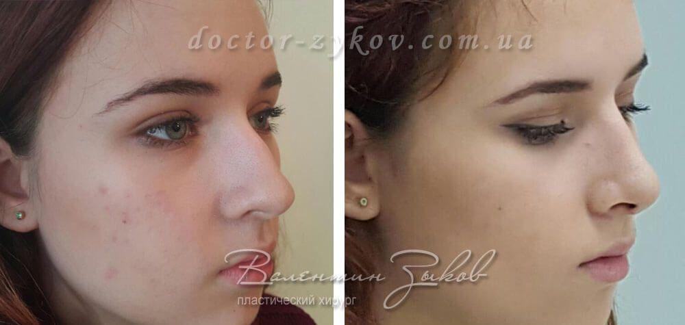 Открытая ринопластика: коррекция кончика, спинки носа с остеотомией. 9 день после операции