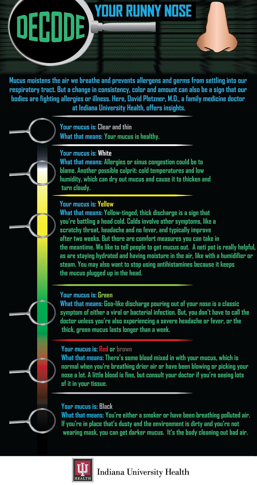 Infographic Is It A Simple Cold Or Sinus Infection Decode Your Runny Nose Runny Nose Sinus Infection Sinusitis