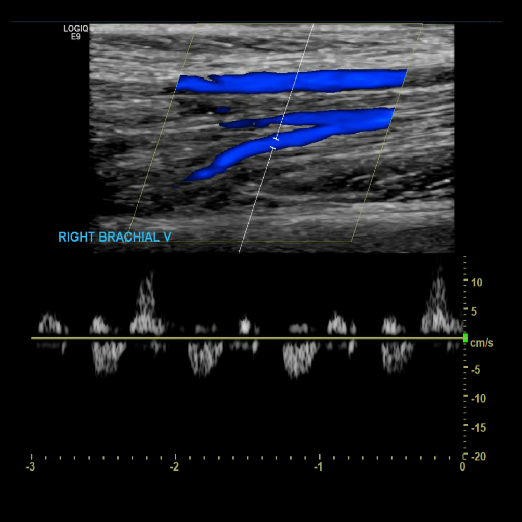 Upper Extremity Venous Doppler Sonographic Tendencies In