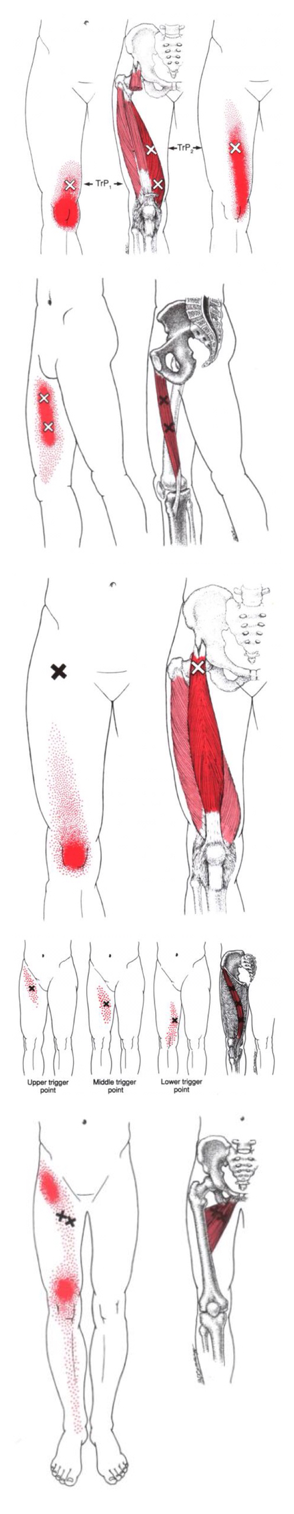 Anteromedial Knee Pain | Health ❤ Myofascial Release ❤ Trigger ...