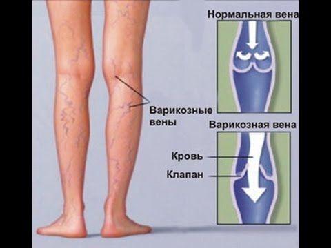 Сосудистые звездочки на ногах удаление ярославль