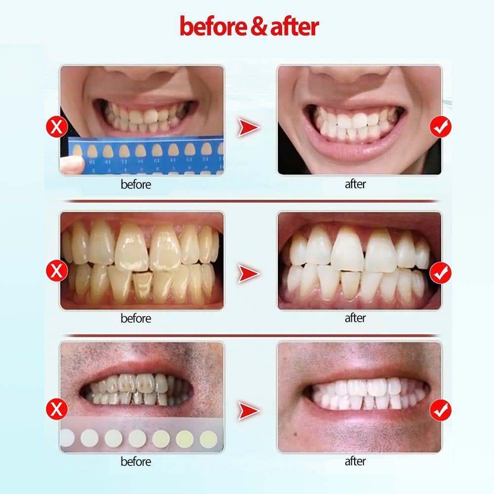 Clareador De Dentes Mostre Seu Sorriso Deslumbrante Para O Mundo O