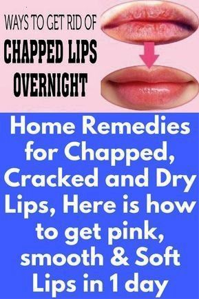 Remedies for Chapped Cracked and Dry Lips Here is how to get pink smooth  Soft Lips in 1 daychappedHome Remedies for Chapped Cracked and Dry Lips Here is how to get pink...