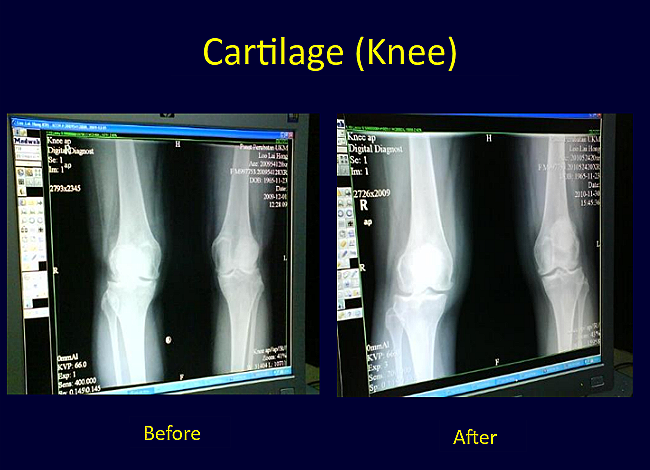 Knee Cartilage before and after photos
