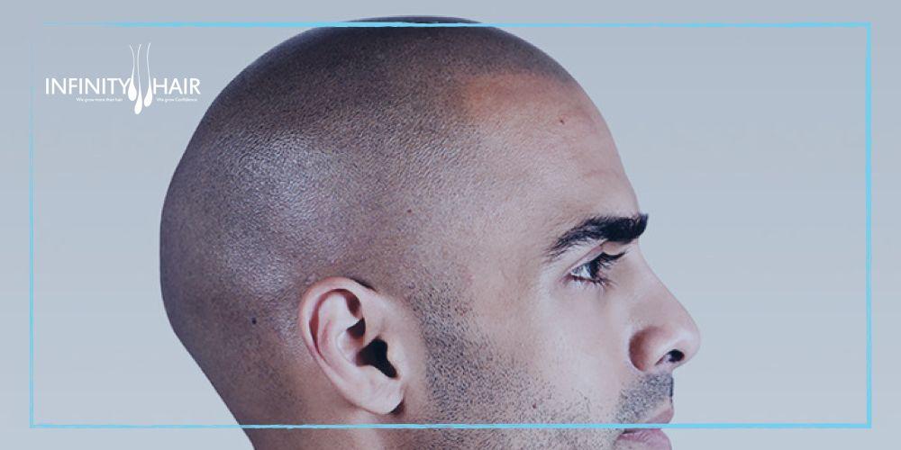 كم تكلفة زراعة الشعر في تركيا وماهي مقومات اختلاف أسعار زراعة الشعر لعام 2018 Infinity Hair Hair Clinic Hair
