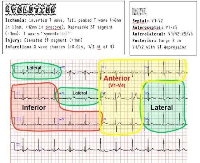 EKG/ECG Cheat Sheet