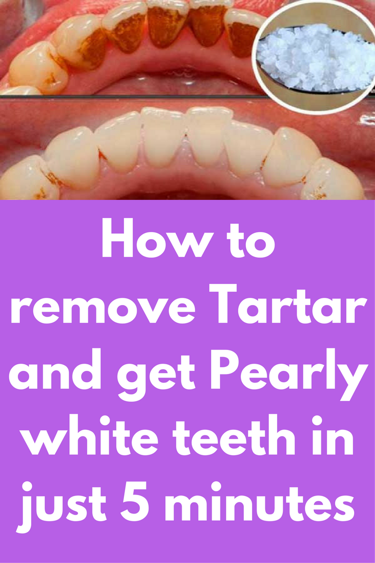 How to remove Tartar and get Pearly white teeth in just  minutes